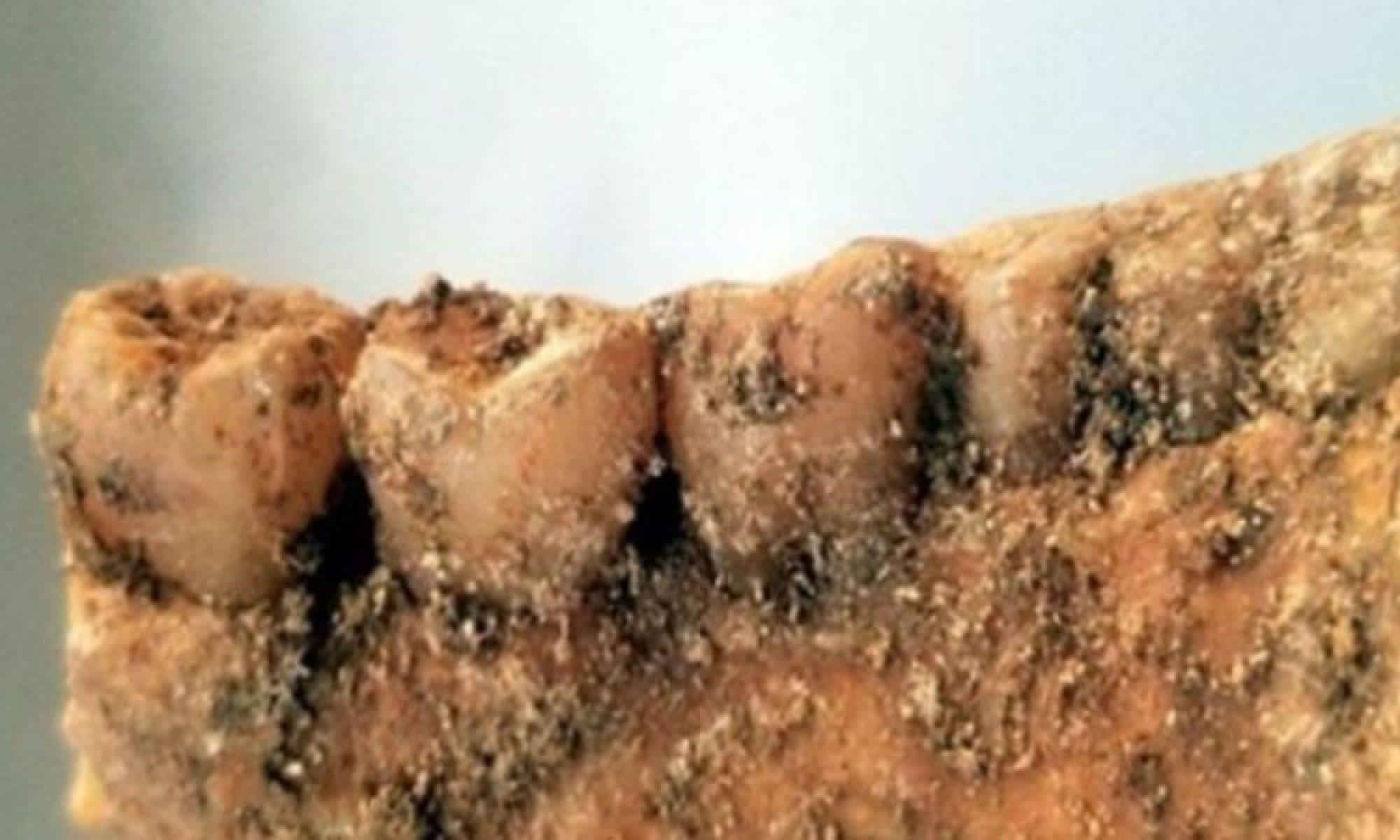 İran: 2300 yıl önce dişlerine implant yapılmış insan iskeletine rastlandı