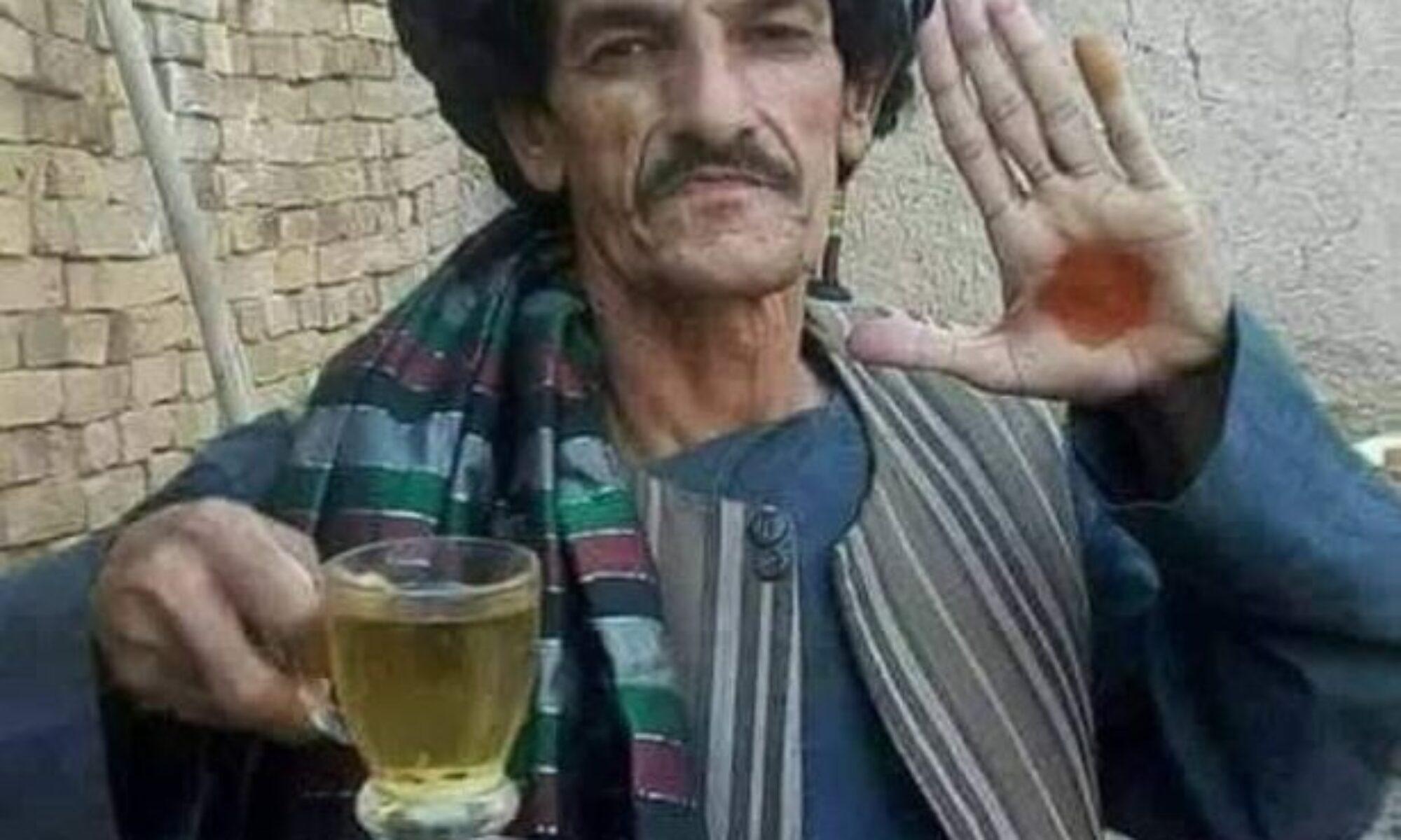 """Taliban Afganların """"güldüren adam"""" dediği komedyen Nazar Mohammad'i öldürdü"""