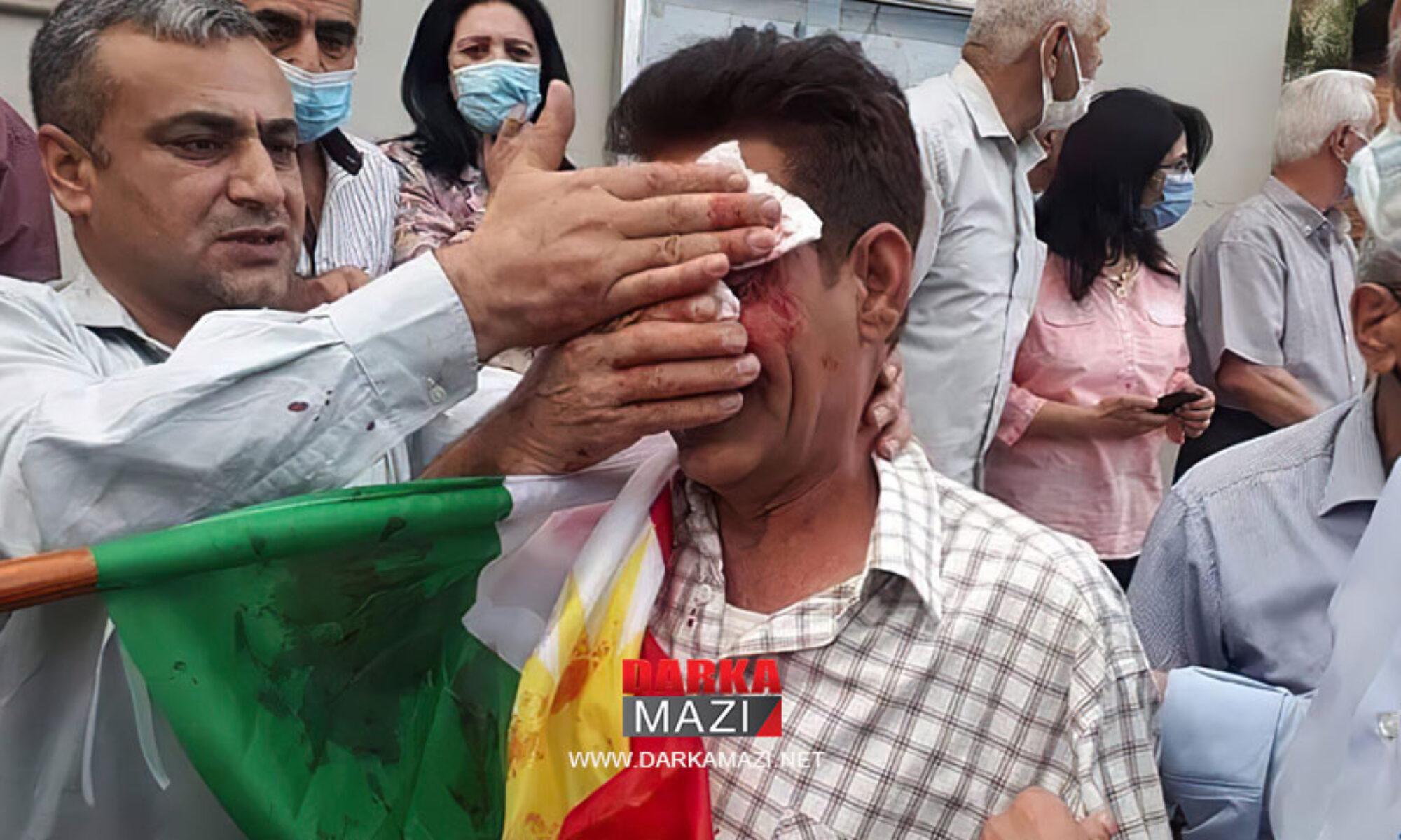PKK demokrasisinin gerçek yüzü Ciwanen Şoreşger pratiklerindeki yüzüdür ENKS Faşisz, Türkiye